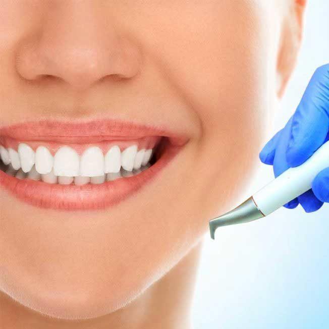 Акция на профгигиену полости рта